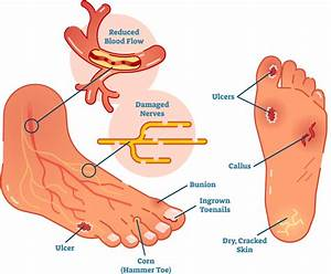 Diagram  Spleen Pain Diagram Full Version Hd Quality Pain