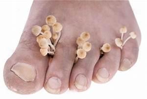 Лечение грибка на ногтях ног спб