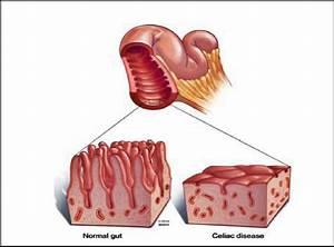 Journey Down The Bowel  A Look At The Coeliac  Celiac  Disease  U2013 Sigliwa