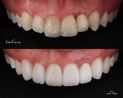 smile stylist    porcelain veneers smile