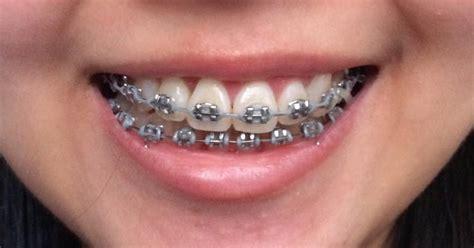 black color braces braces journey chapter 17 0 felicia alexiz