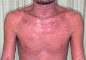 Dr  Fukaya U0026 39 S Blog About Tsa  Topical Steroid Addiction