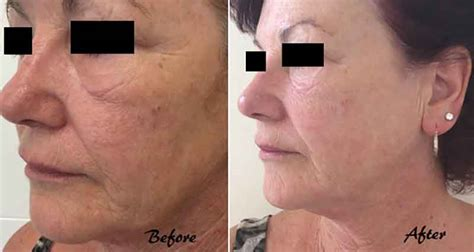 led light therapy before and after led light therapy for skin in newcastle the mayah clinic