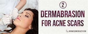 Fractional, cO2 Laser, treatment, skin, resurfacing