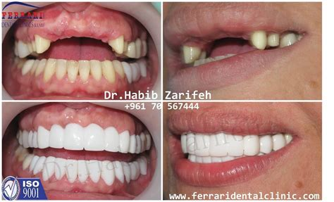 veneer prices top 28 cost veneer family dentistry veneers cost porcelain veneers cost and options