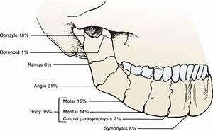 Maxillofacial Injuries - Trauma