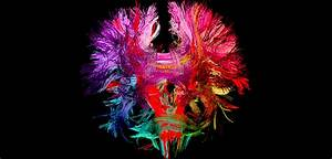 Study  To Improve Brain Health You Need Both Aerobic And Cognitive Exercise