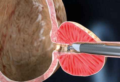 prostatalappen