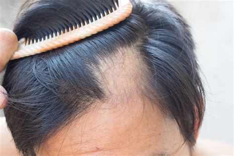 hair loss front of head causes and treatments of hair loss from alopecia areata