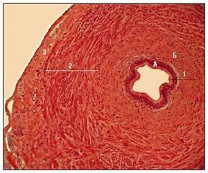 Киста простата у мужчин лечение народные средствами