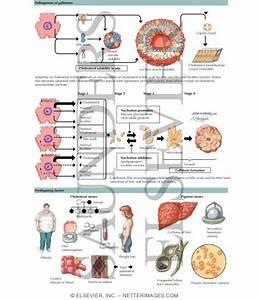 gallstones treatments