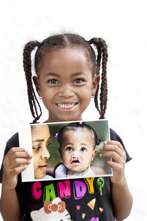 Cleft Lip Charity We Work A Smile It From Your
