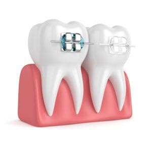 best colors for braces what are the best colors for braces dental