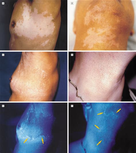 woods l examination vitiligo treatment of quot stable quot vitiligo by timedsurgery and