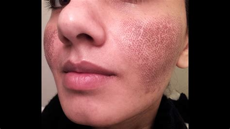 BEFORE & AFTER my Fraxel laser experience for acne spots