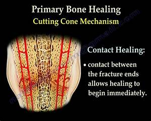 Fracture Healing Part 2 - Everything You Need To Know