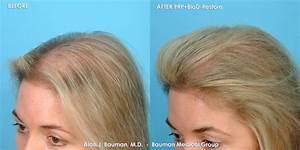 38 Y  O Female Prp Hair Regrowth Treatment Results  U00b7 Bauman Medical