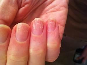 Грибок ногтей на руках лечение йод