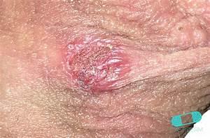Online Dermatology - Genital Herpes