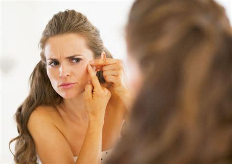 Wat te doen tegen acne