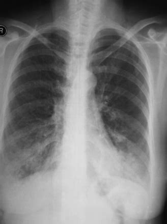 Two Cases of Tracheal Disease Misdiagnosed as Difficult-to