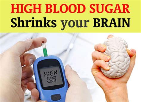 warning high blood sugar shrinks  brain dr sam robbins