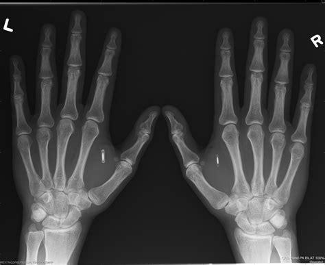 hand body strange chips dangerous rfid hacks useful actually embedded magnets embedding spot popular things
