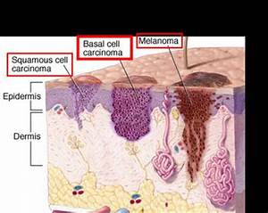What is Basal Cell Carcinoma? - Basal Cell Carcinoma ...