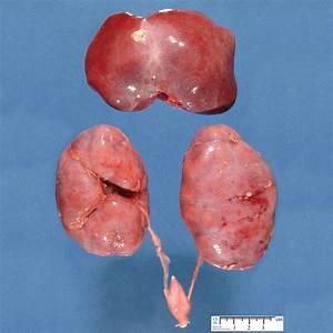 Polycystic Kidney, Autosomal Recessive; Autosomal ...