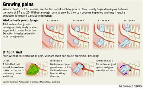 Average recovery time after wisdom tooth removal 8 common problems caused by wisdom teeth what to expect during the extraction procedure Wisdom Tooth Infographic