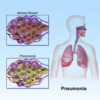 What Is Pneumonia? Symptoms, Vaccine & Treatment. Roofing Contractors Long Island. I Need A Line Of Credit Small Business Topics. California Contractor Bond Bail Bonds Sanford. Paperless Payday Loans Help With Dissertation. Car Rental Queenstown Nz Affordable Term Life. How To Find Credit Report Company White Paper. Free Advertising Websites Dr Markham Dentist. Alta Vista Chiropractic Economist Ranking Mba