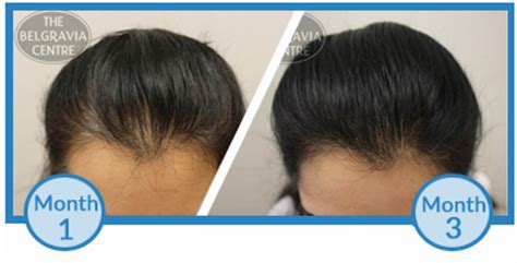 emu oil for hair loss after 3 why am i losing more hair after just starting hair loss treatment