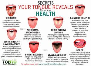 Does Your Tongue Have Something To Say? - Stay At Home Mum