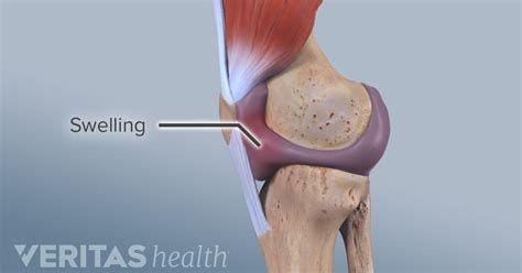 Severe arthritis in knee symptoms