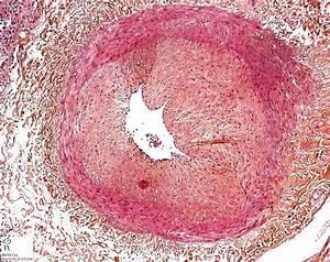 intimal fibrosis - Humpath.com - Human pathology Nutritional Therapy