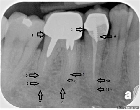 endodontic therapy access means root canal opening