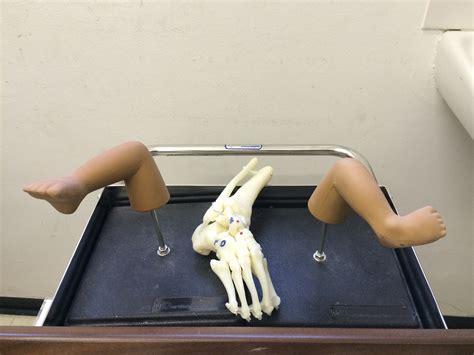They will roll, sit, crawl. Club Foot Clinic | MCH