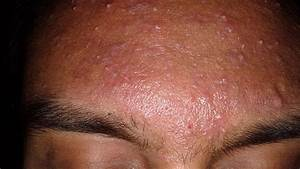 Types Of Acne  Pictures  Treatments  And More
