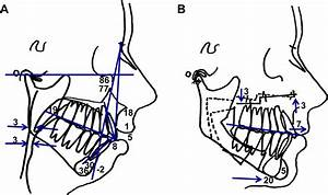 Looking At This Diagram U0026 39 S Lower Jaw Surgery Movement Only