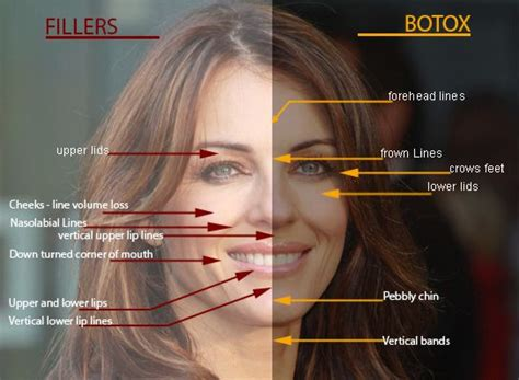 botox injection  wrinkles philadelphia  botox
