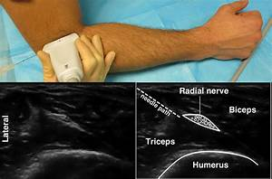 Forearm Blocks  U2014 Highland Em Ultrasound Fueled Pain Management