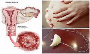 3 Natural remedies for treating yeast infection ...
