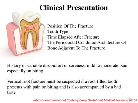 Root Fracture Symptoms