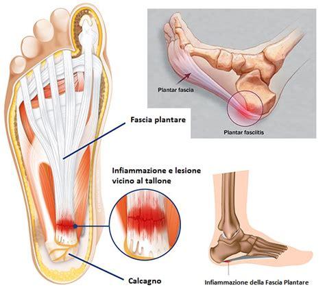 dolore al tallone laterale interno dolori ai piedi la fascite plantare sebastian guzzetti