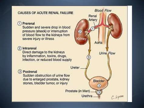 pathophysiology  acute renal failure