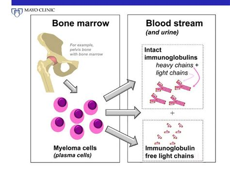 light chain myeloma prognosis 45 best images about multiple myeloma on pinterest blood