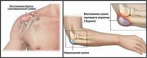 Мазь для снятия боли в суставах при артрозе