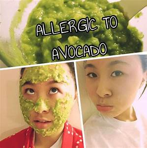 10 Home Remedies to Get Rid of Avocado Allergy Fast  Allergy Rid