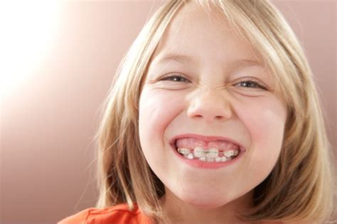 Most dental insurance policies are designed to help you and your family in the event of a dental emergency and to provide you with preventative routine care to help prevent emergencies from occurring. How to Get Braces Without Insurance   Sapling