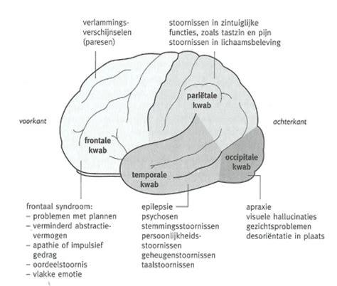vermoeidheid na hersenbloeding